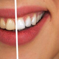 Blanchiment dentaire : quels sont les prix ?